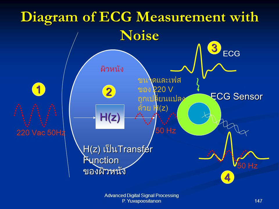 Diagram of ECG Measurement with Noise