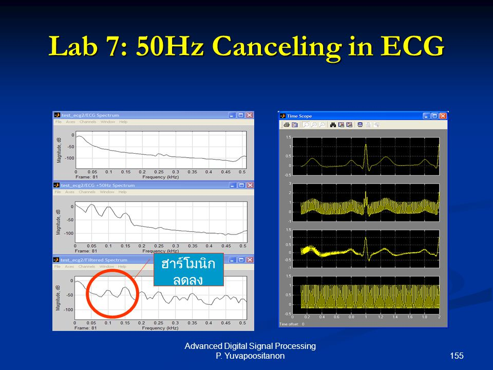 Lab 7: 50Hz Canceling in ECG