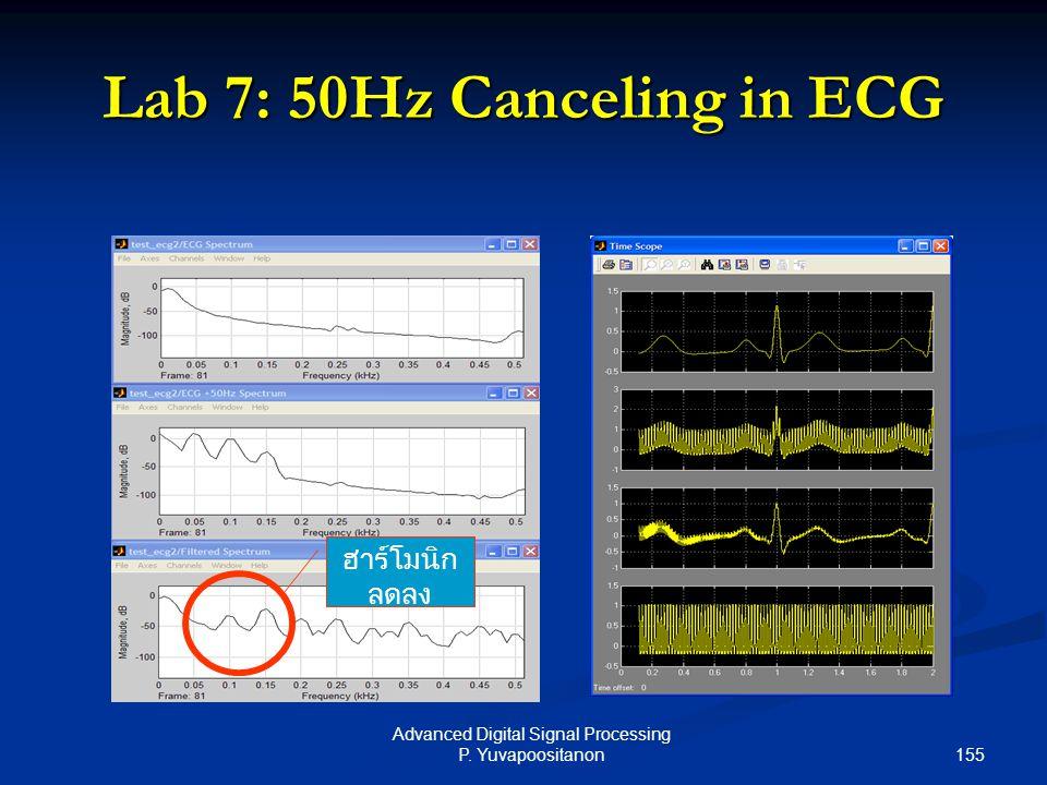 Lab 7: 50Hz Canceling in ECG