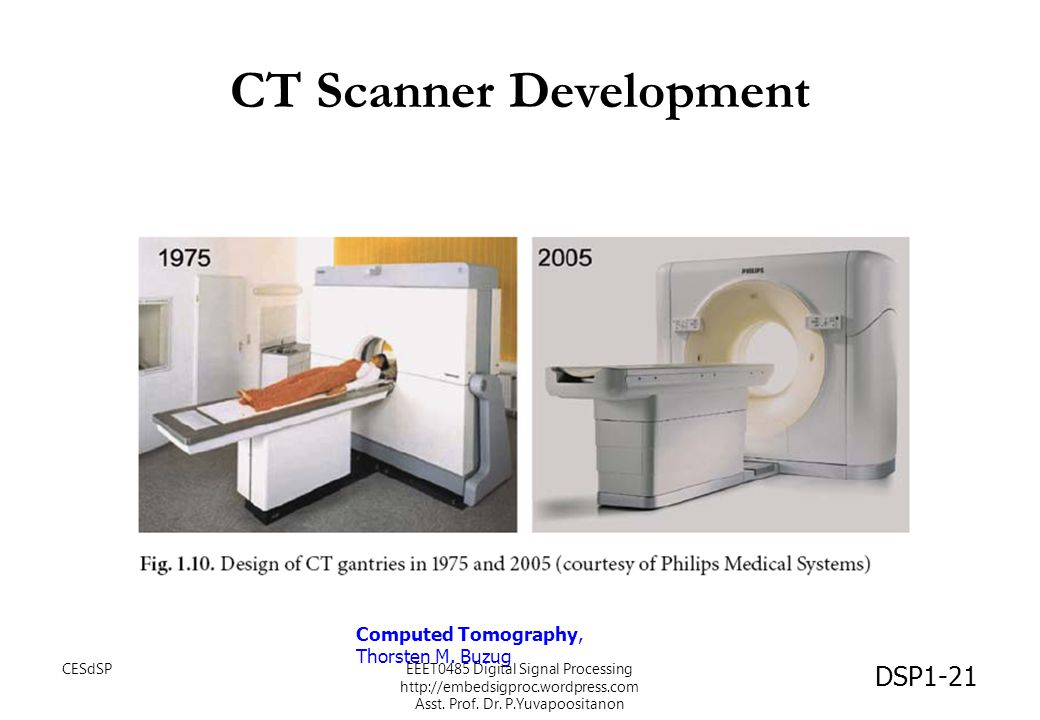 CT Scanner Development