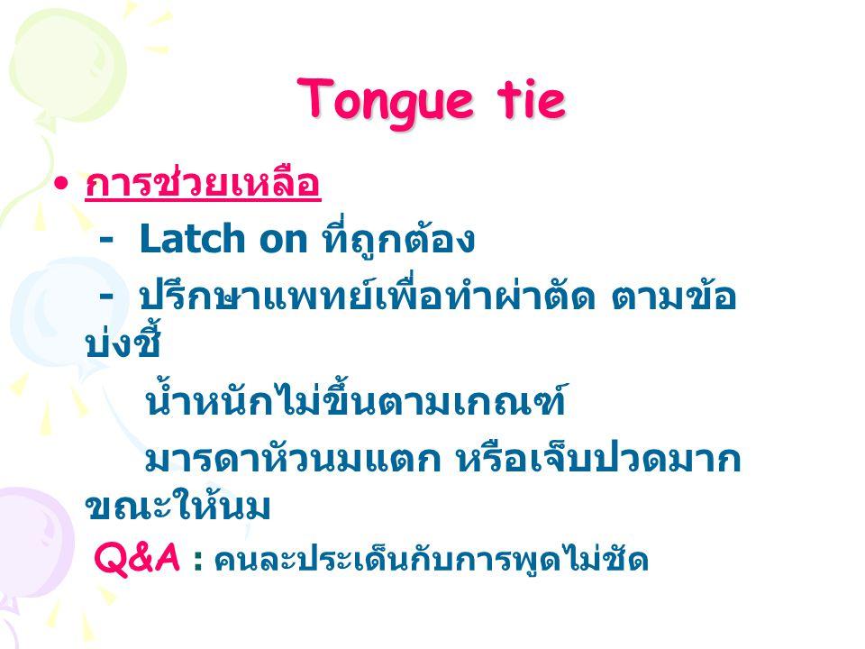 Tongue tie การช่วยเหลือ - Latch on ที่ถูกต้อง