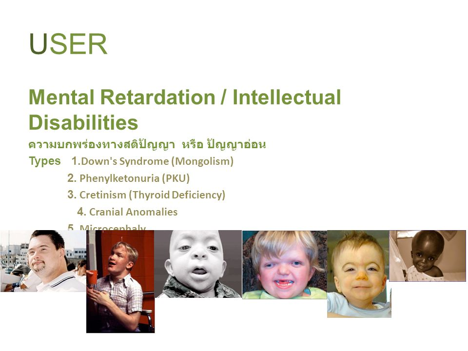 USER Mental Retardation / Intellectual Disabilities