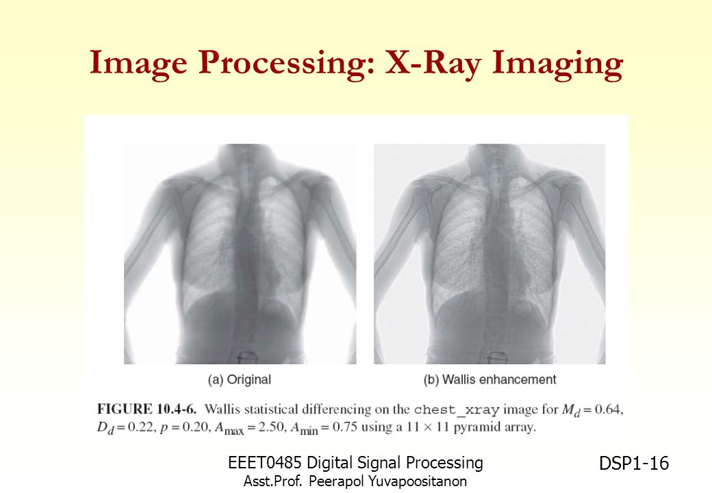 Image Processing: X-Ray Imaging