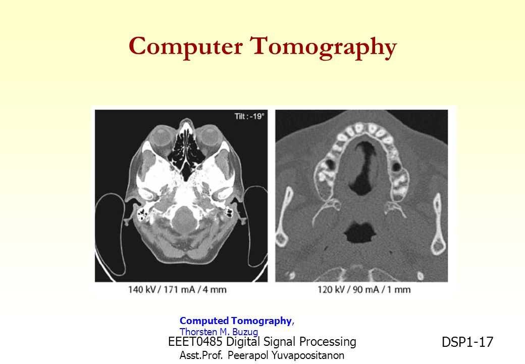 Computer Tomography EEET0485 Digital Signal Processing