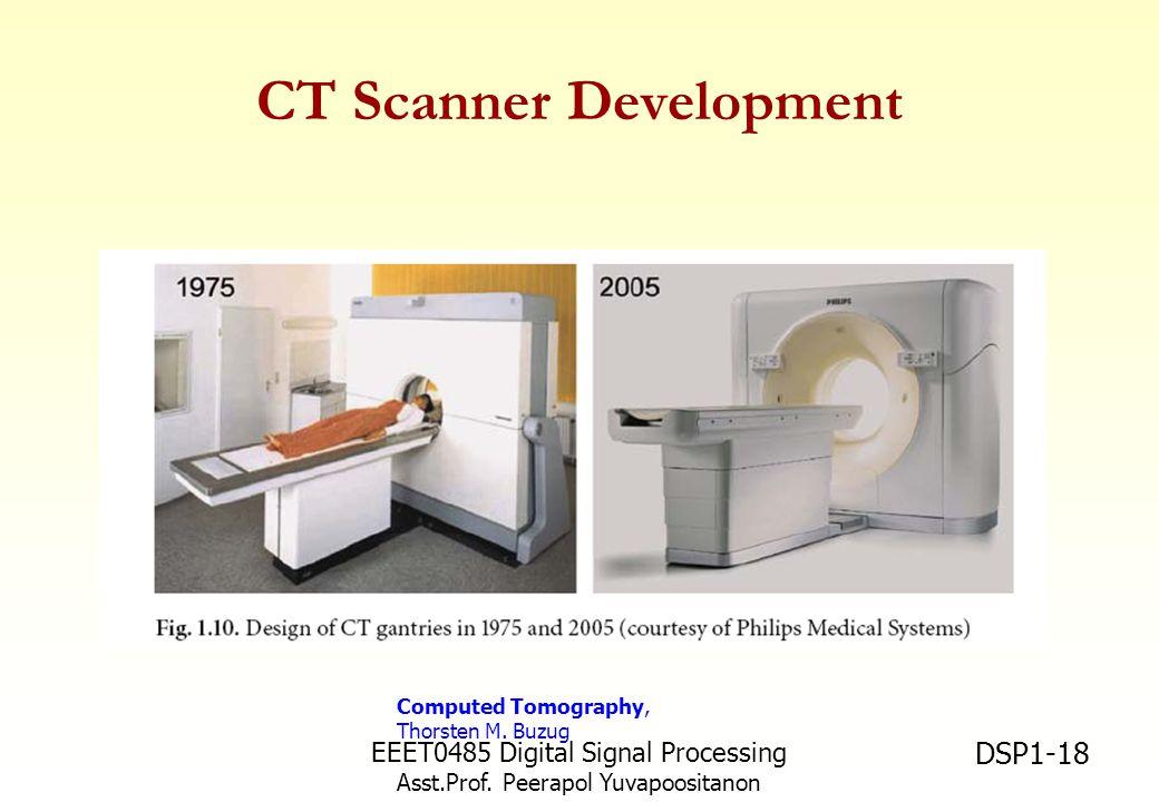 CT Scanner Development