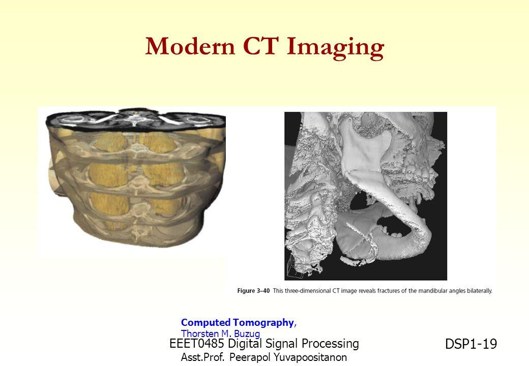 Modern CT Imaging EEET0485 Digital Signal Processing