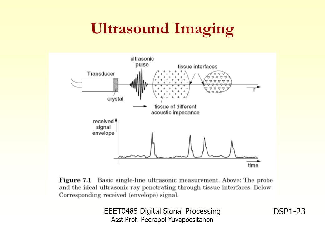 Ultrasound Imaging EEET0485 Digital Signal Processing