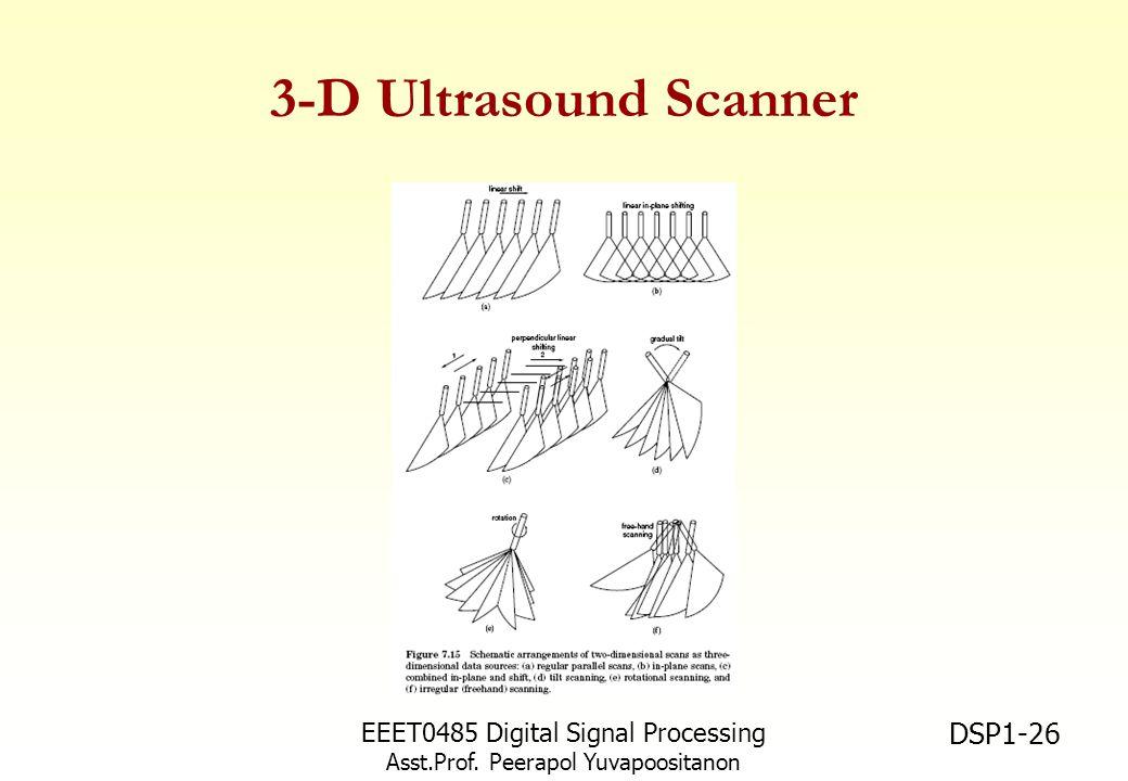 3-D Ultrasound Scanner EEET0485 Digital Signal Processing