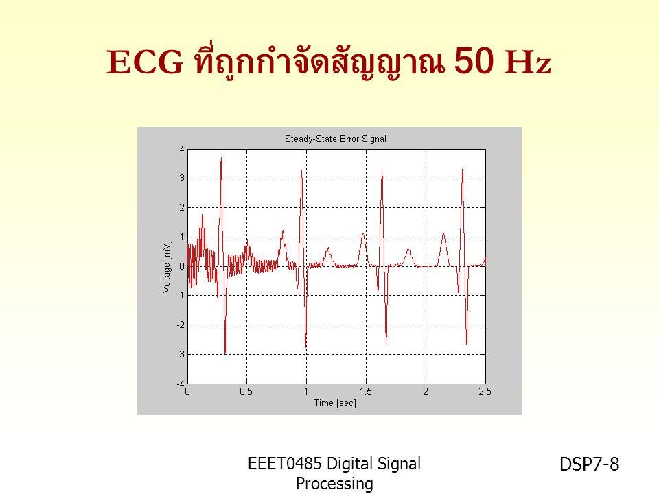 ECG ที่ถูกกำจัดสัญญาณ 50 Hz