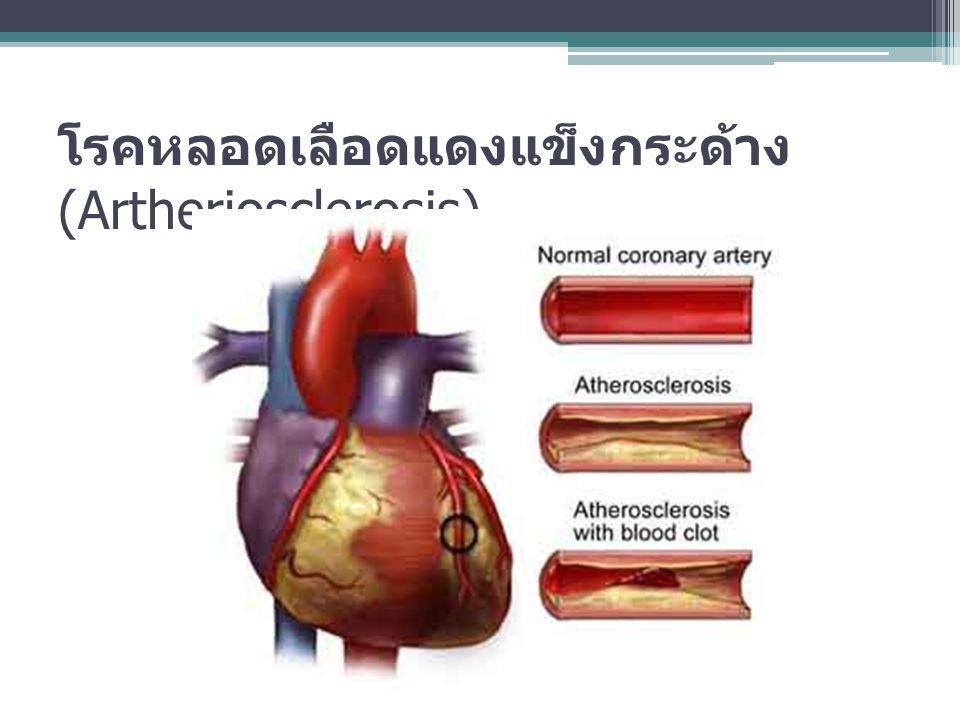 โรคหลอดเลือดแดงแข็งกระด้าง (Artheriosclerosis)