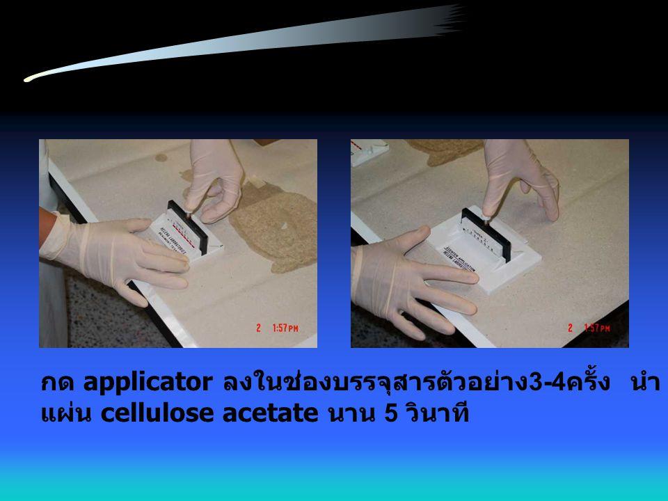 กด applicator ลงในช่องบรรจุสารตัวอย่าง3-4ครั้ง นำ applicator มากดลงบน