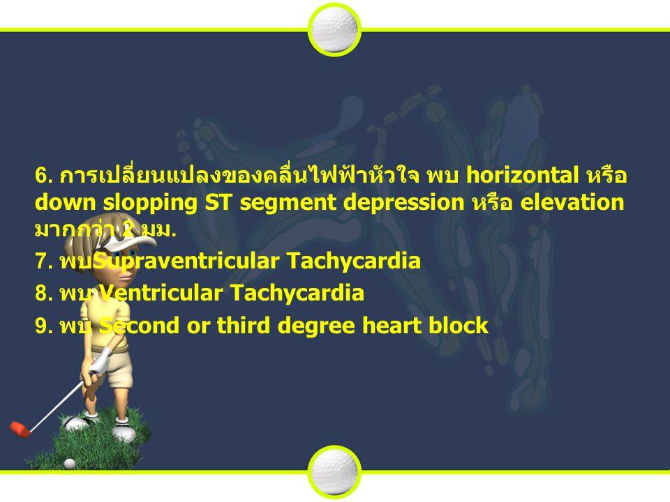 6. การเปลี่ยนแปลงของคลื่นไฟฟ้าหัวใจ พบ horizontal หรือ down slopping ST segment depression หรือ elevation มากกว่า 2 มม.
