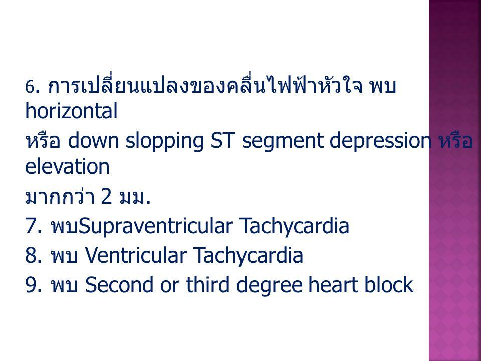 หรือ down slopping ST segment depression หรือ elevation มากกว่า 2 มม.