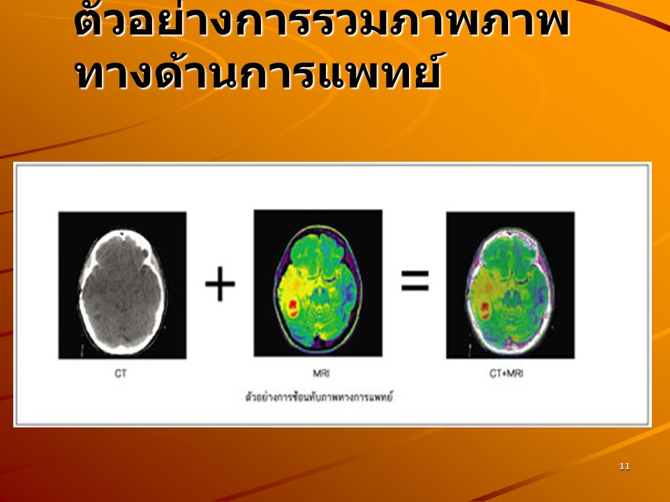 ตัวอย่างการรวมภาพภาพทางด้านการแพทย์