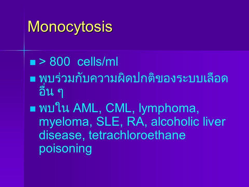 Monocytosis > 800 cells/ml พบร่วมกับความผิดปกติของระบบเลือดอื่น ๆ