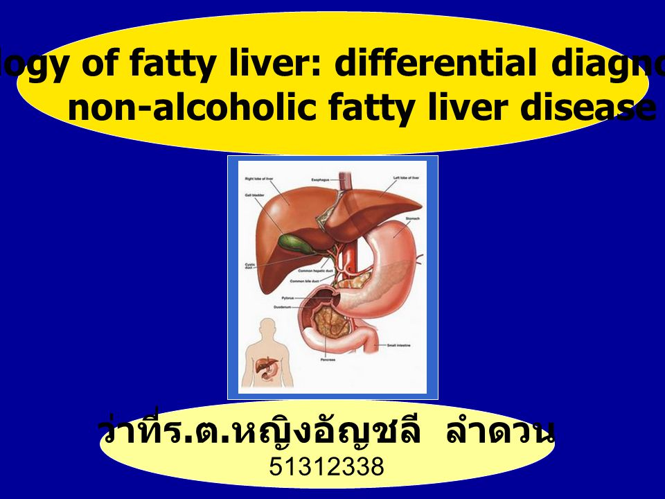 Pathology of fatty liver: differential diagnosis of
