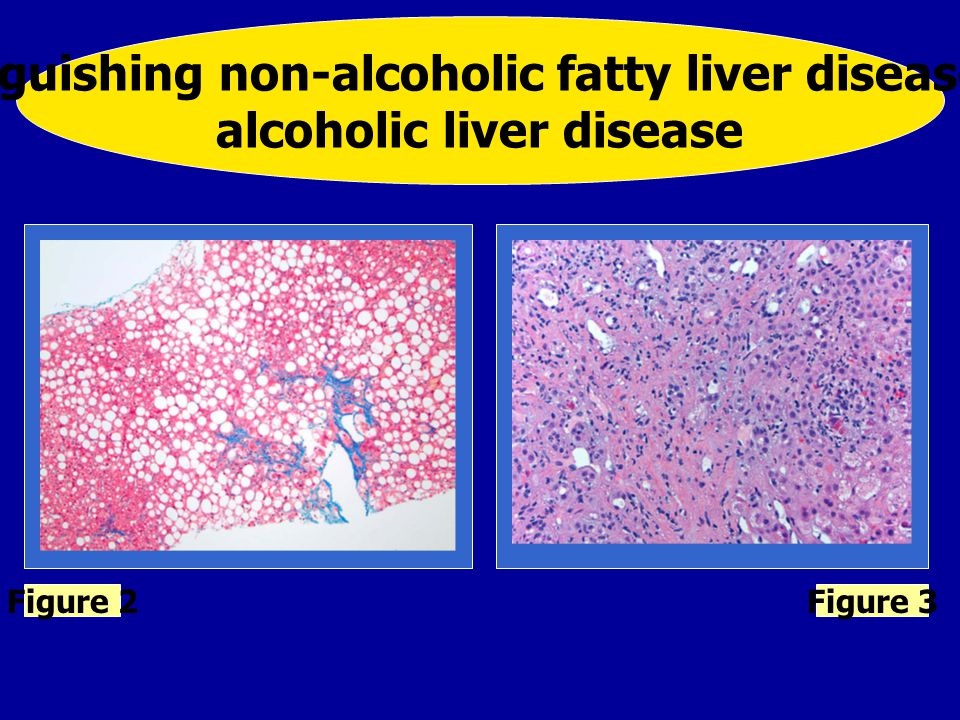 Distinguishing non-alcoholic fatty liver disease and