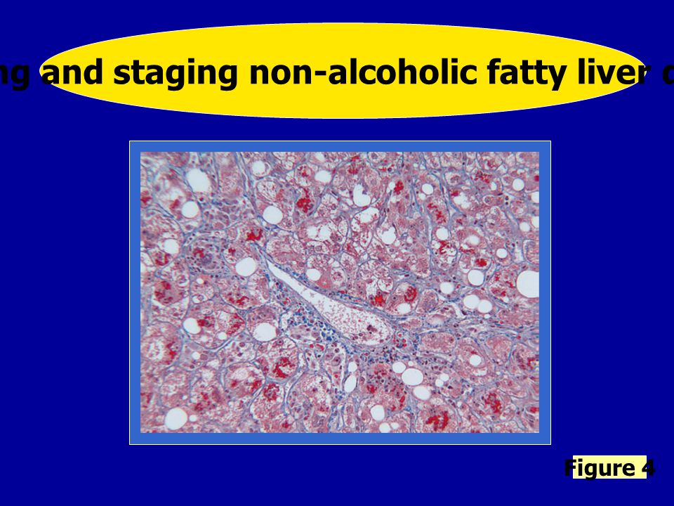 Grading and staging non-alcoholic fatty liver disease