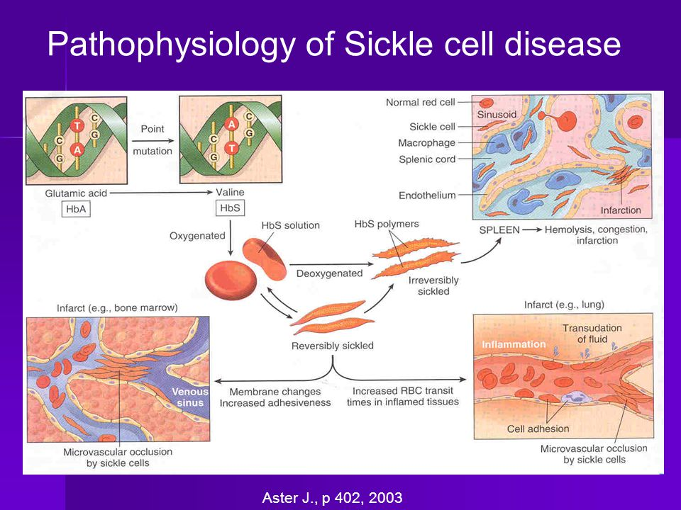 Pathophysiology of Sickle cell disease
