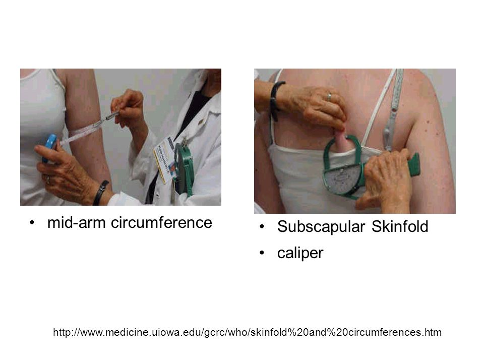 mid-arm circumference Subscapular Skinfold caliper