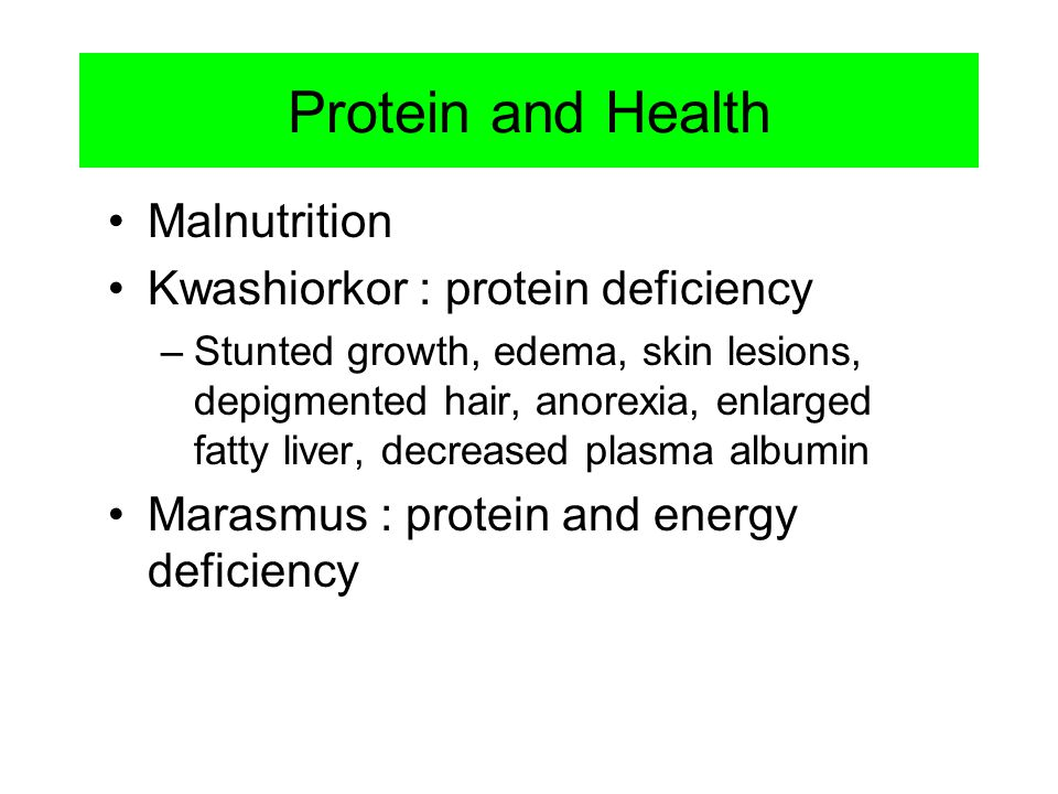 Protein and Health Malnutrition Kwashiorkor : protein deficiency