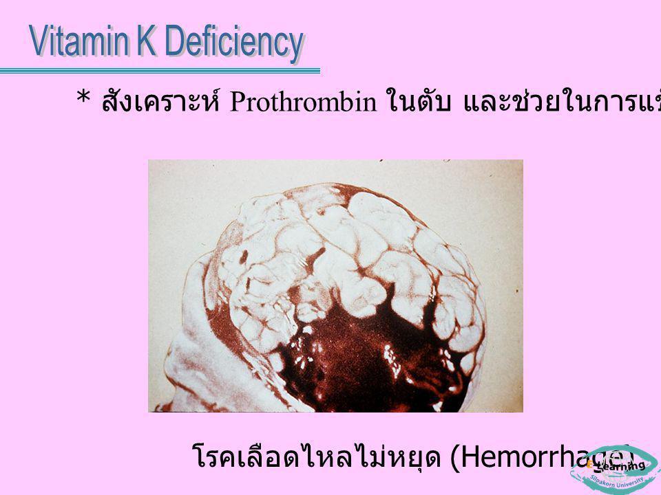 Vitamin K Deficiency * สังเคราะห์ Prothrombin ในตับ และช่วยในการแข็งตัวของเลือด.