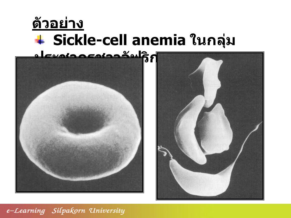 ตัวอย่าง Sickle-cell anemia ในกลุ่มประชากรชาวอัฟริกา