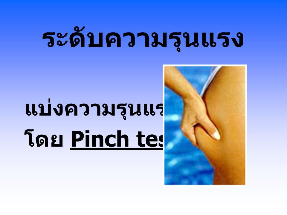 ระดับความรุนแรง แบ่งความรุนแรง โดย Pinch test