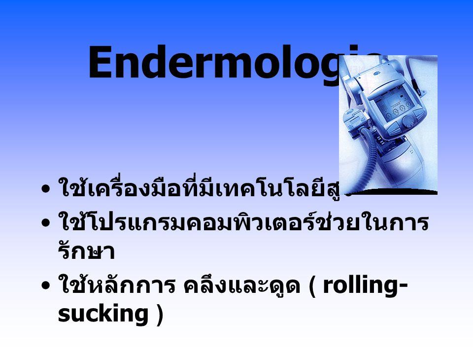 Endermologie ใช้เครื่องมือที่มีเทคโนโลยีสูง