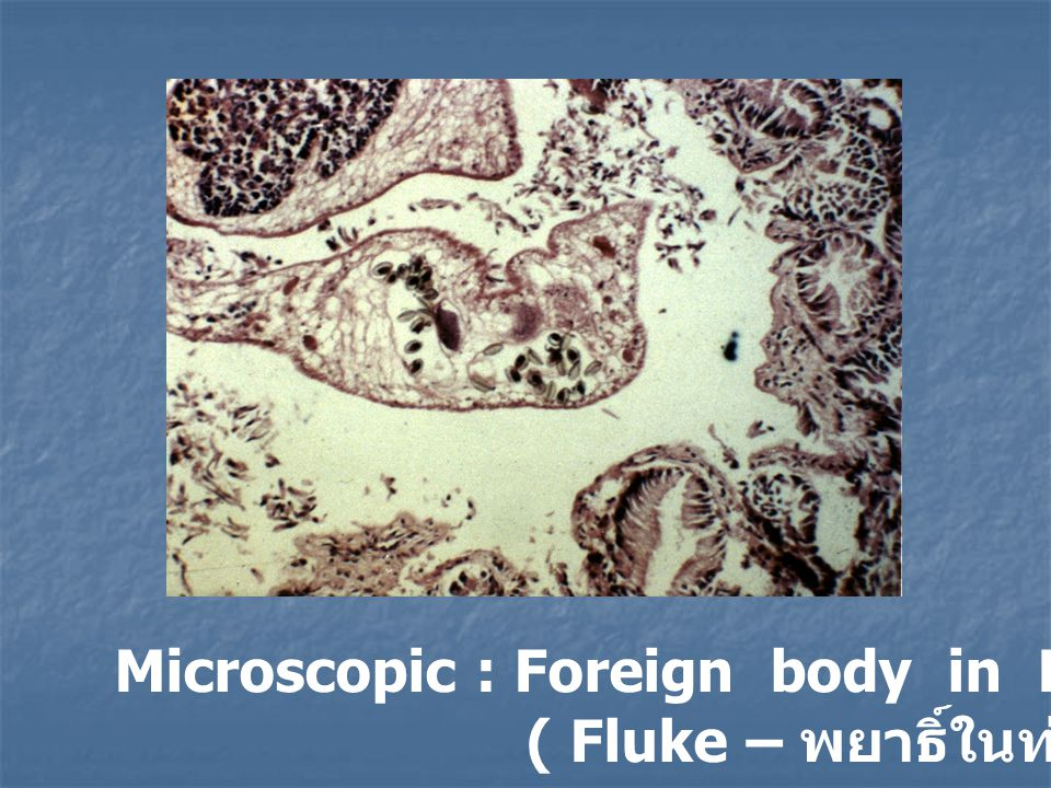Microscopic : Foreign body in Hepatic bile duct
