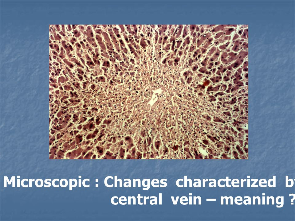 Microscopic : Changes characterized by loss of Liver cord around