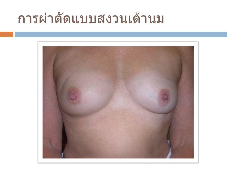 การผ่าตัดแบบสงวนเต้านม
