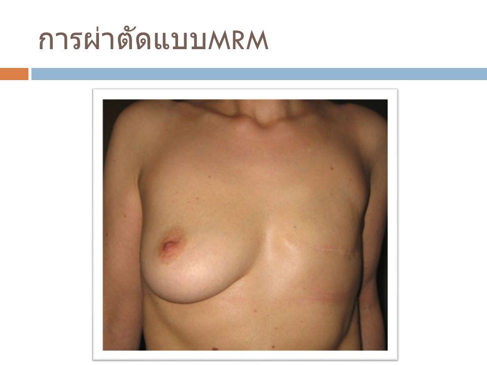 การผ่าตัดแบบMRM