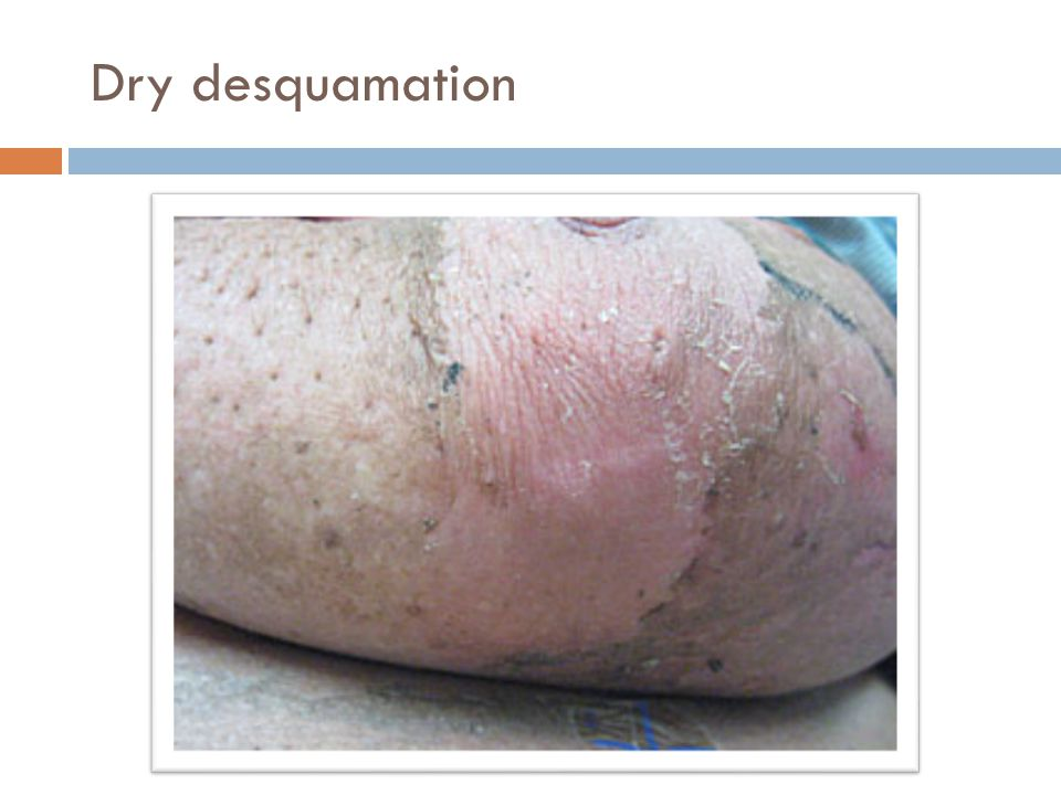 Dry desquamation