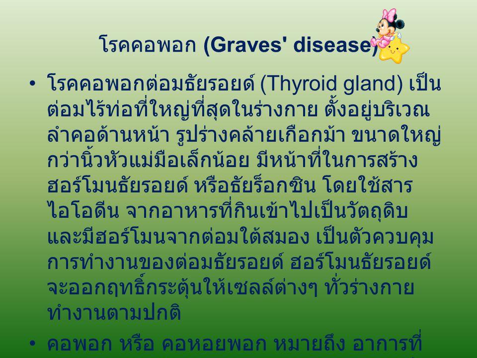 โรคคอพอก (Graves disease)
