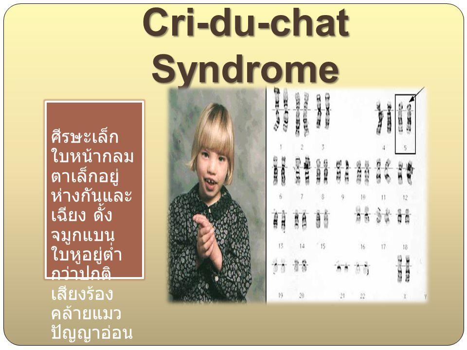 Cri-du-chat Syndrome ศีรษะเล็ก ใบหน้ากลม ตาเล็กอยู่ ห่างกันและ เฉียง ดั้ง จมูกแบน ใบหูอยู่ต่ำ กว่าปกติ เสียงร้อง คล้ายแมว ปัญญาอ่อน.