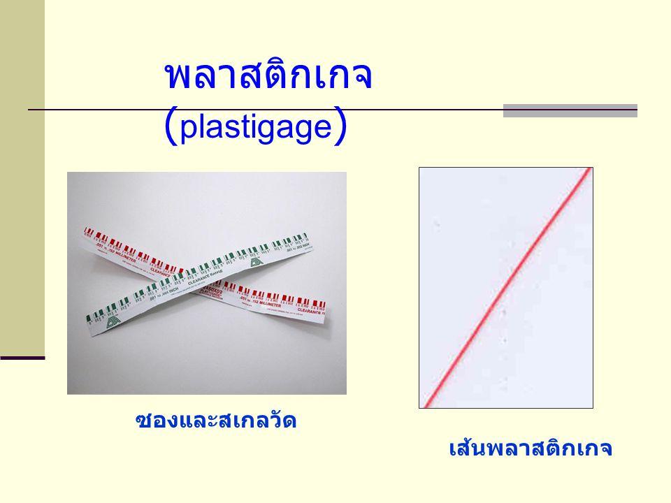 พลาสติกเกจ (plastigage)