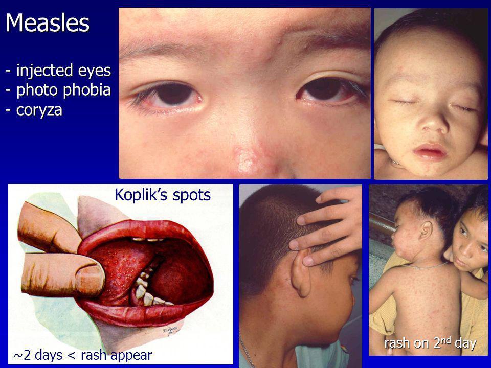 Measles - injected eyes photo phobia coryza Koplik's spots