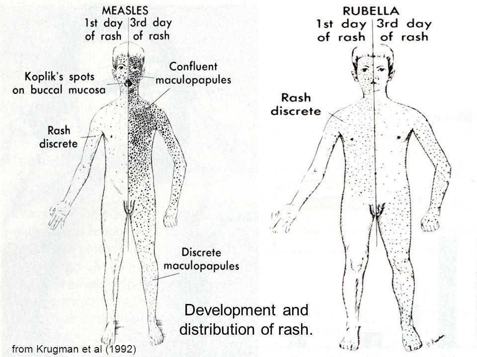 Development and distribution of rash.