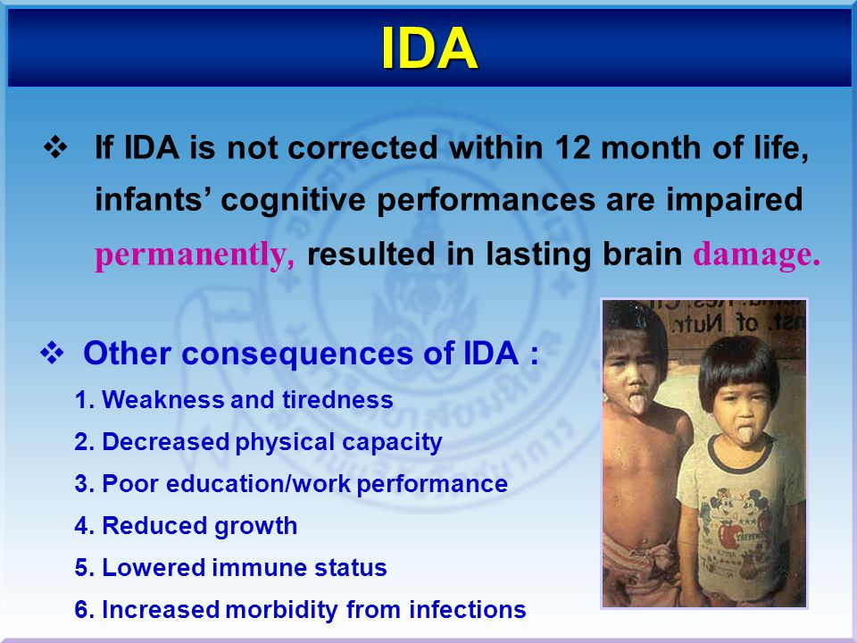 IDA If IDA is not corrected within 12 month of life, infants' cognitive performances are impaired permanently, resulted in lasting brain damage.