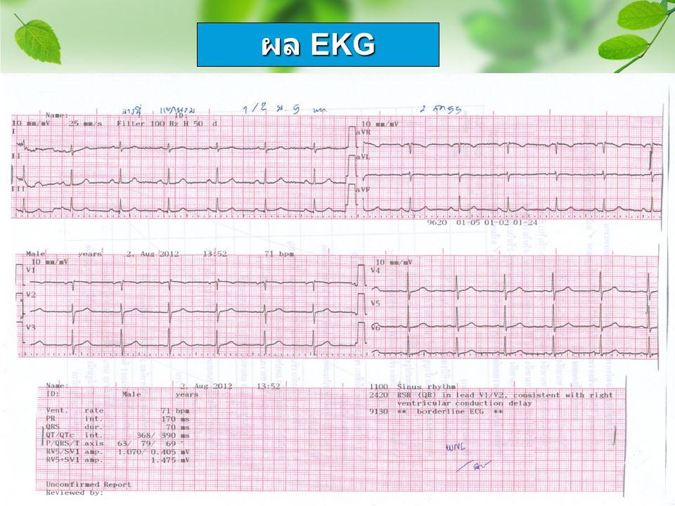 ผล EKG