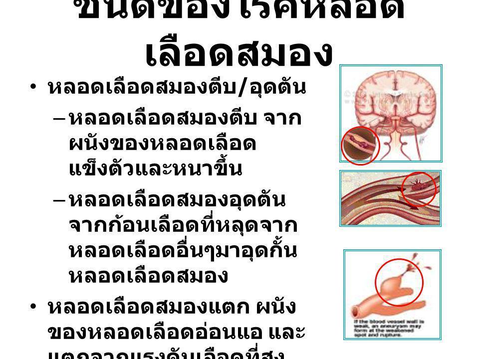 ชนิดของโรคหลอดเลือดสมอง