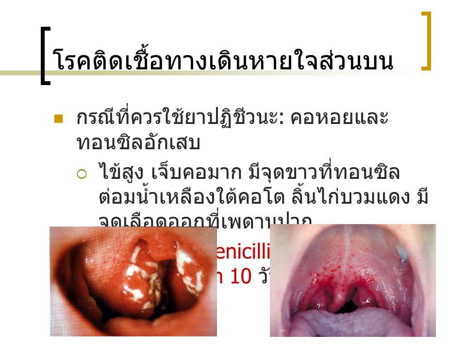 โรคติดเชื้อทางเดินหายใจส่วนบน