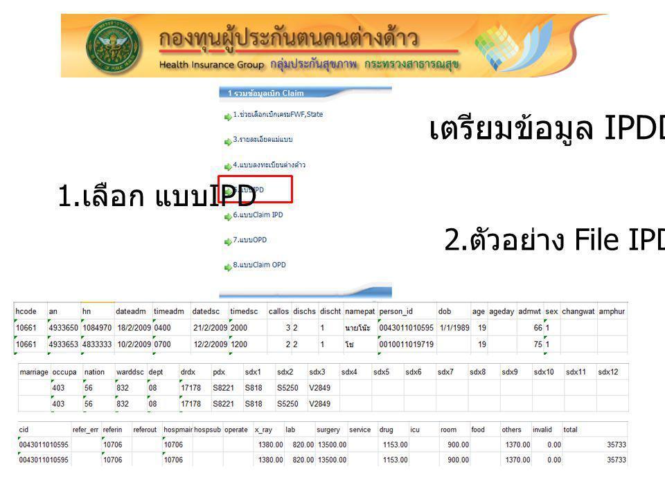 เตรียมข้อมูล IPDData 1.เลือก แบบIPD 2.ตัวอย่าง File IPDData