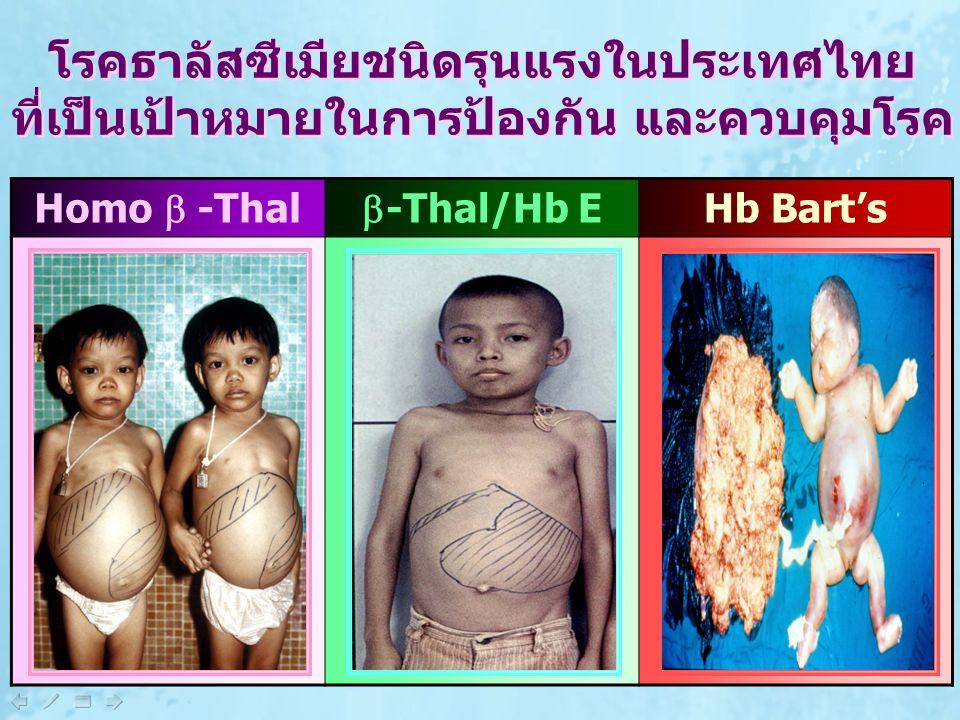 โรคธาลัสซีเมียชนิดรุนแรงในประเทศไทย ที่เป็นเป้าหมายในการป้องกัน และควบคุมโรค