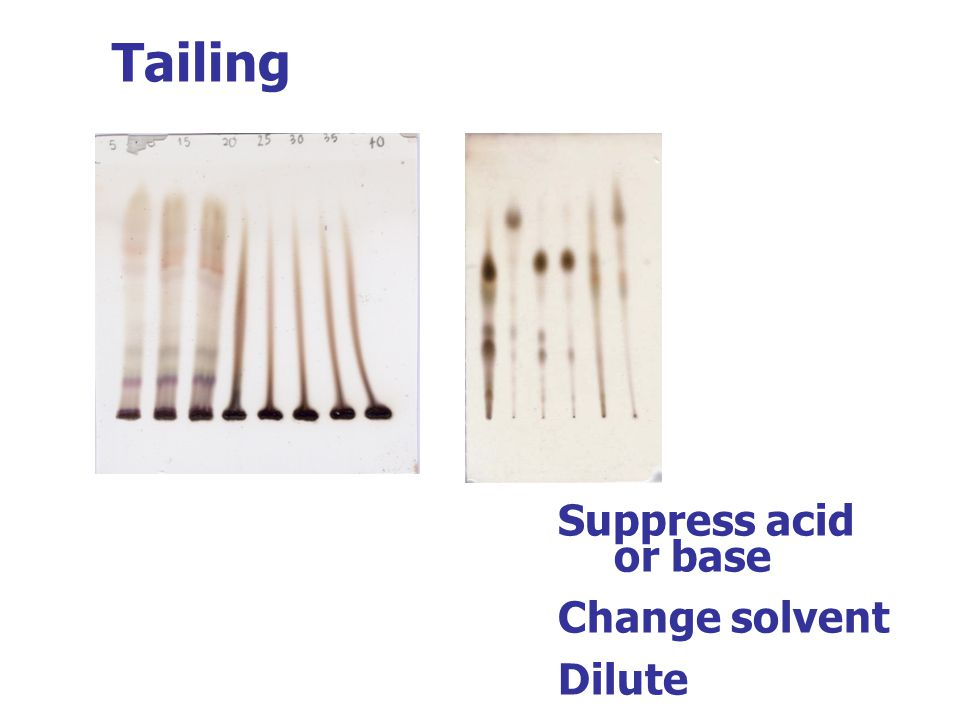 Tailing Suppress acid or base Change solvent Dilute