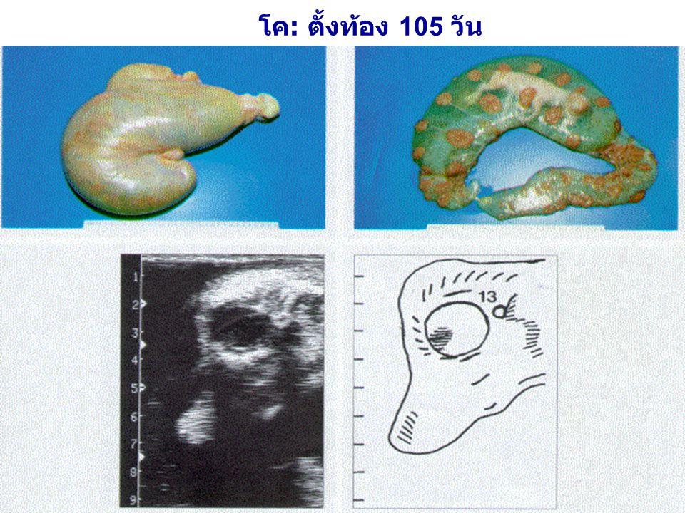 โค: ตั้งท้อง 105 วัน