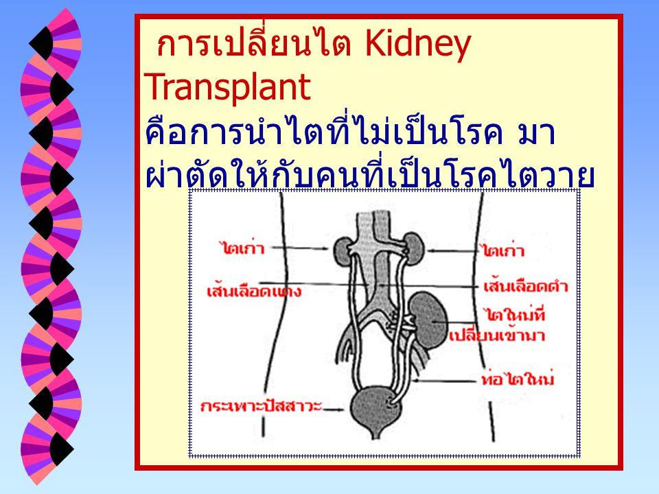 การเปลี่ยนไต Kidney Transplant