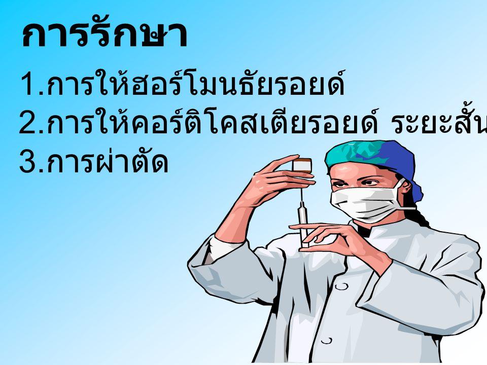 การรักษา 1.การให้ฮอร์โมนธัยรอยด์ 2.การให้คอร์ติโคสเตียรอยด์ ระยะสั้น