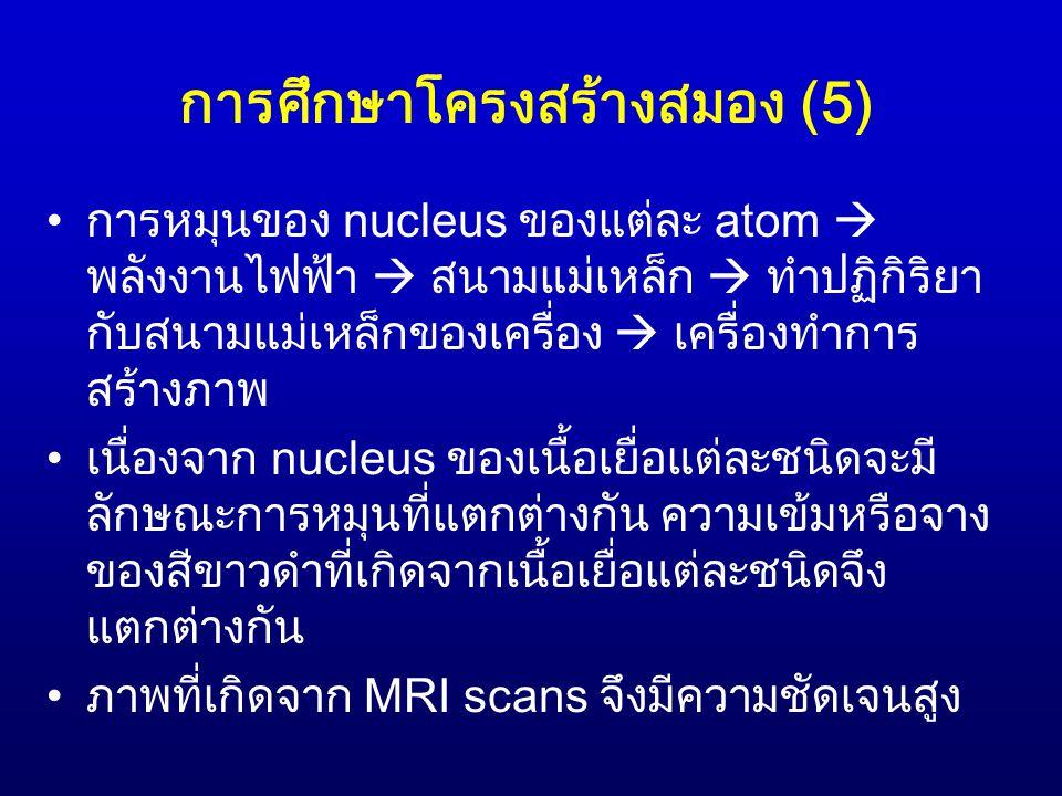 การศึกษาโครงสร้างสมอง (5)